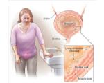 3 Interstitial Cystitis
