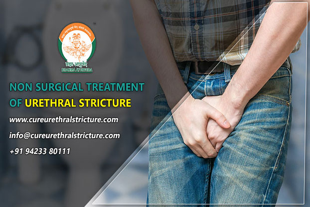 Non Surgical Treatment of Urethral Stricture